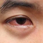 Ano Ba Ang Epektibong Gamot Sa Sore Eyes?