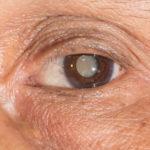 Katarata: Sintomas at Gamot